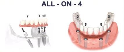 протезирование all-on
